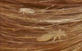 Вши и гниды на длинных волосах: признаки появления, методы удаления